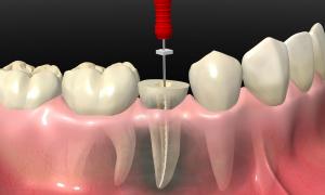 Qué es la endodoncia