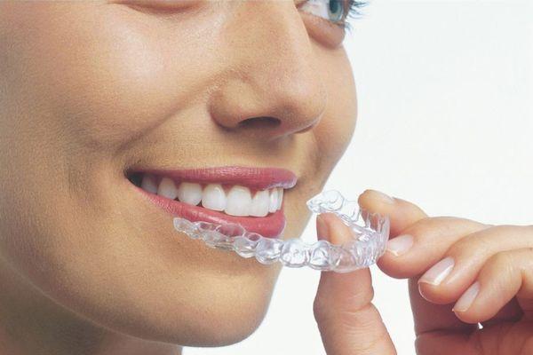 ortodoncia digital 3d en el prat de llobregat