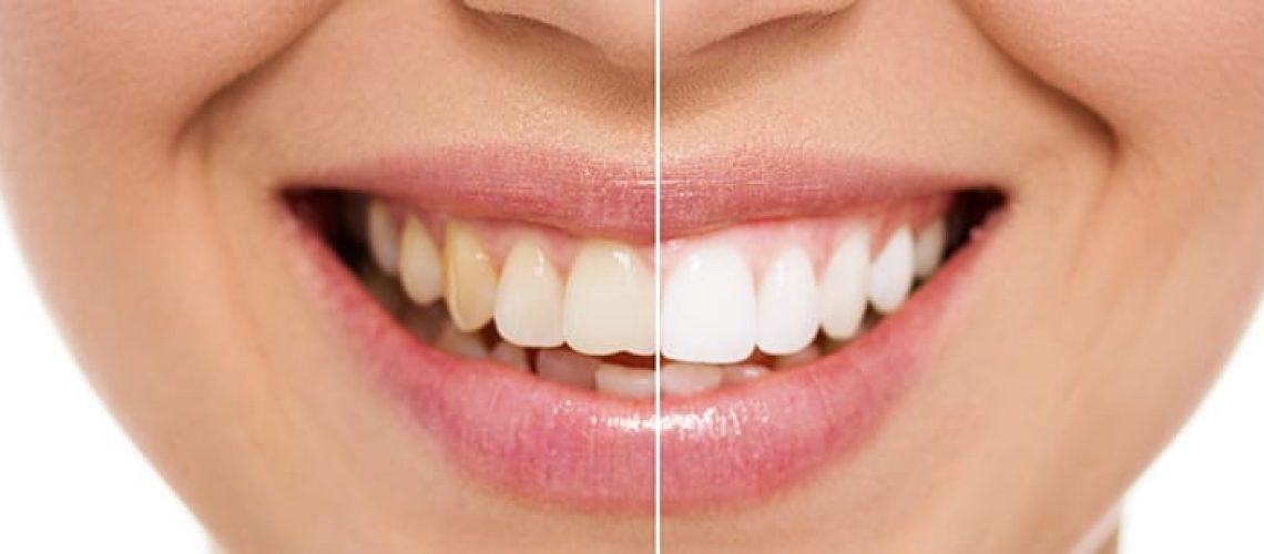 blanqueamiento dental en el Prat de Llobregat